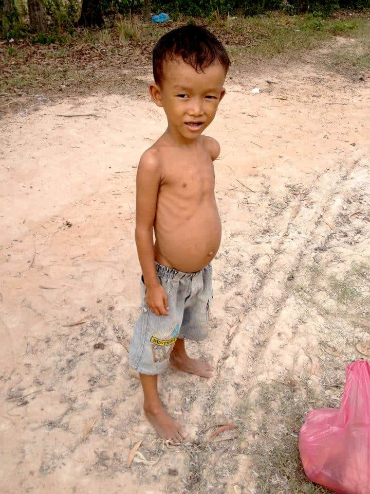 Poor kid in siem reap with a swollen stomach